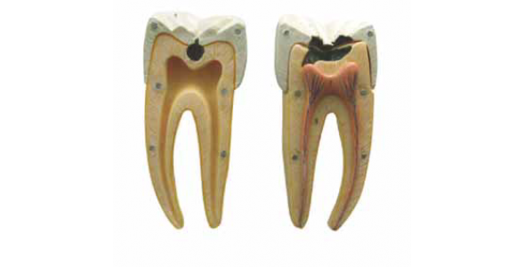 B10005-2 Dental Çürük Modeli