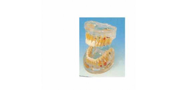 B10011 Transparan Dental Patoloji Modeli